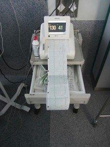 陣痛の強さや間隔と胎児の心拍数を測る機械。これは日本と同じですね。